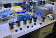 Laboratory shot of the MJFF Dundee Neutrophil Protocol