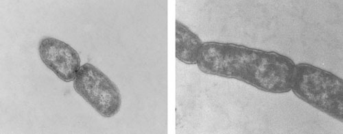Figure 1. Transmission electron micrograph images of (left panel) E. coli K12 pa